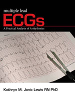Multiple Lead ECGs: A Practical Analysis of Arrhythmias